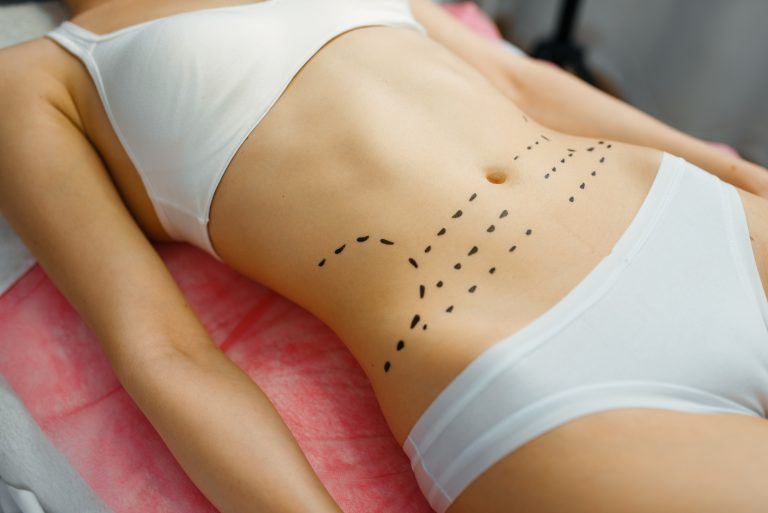 female patient with markers on her abdomen botox FG6FE6N