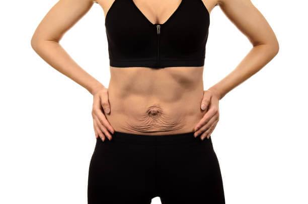 diastasis abdominal de rectos