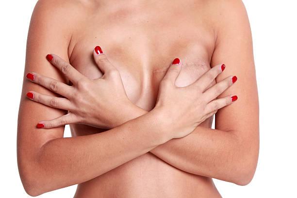 mastectomia 1